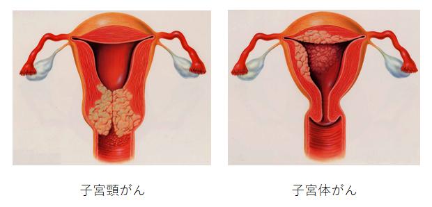 頚 癌 子宮